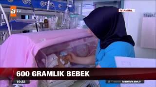 600 gramlık bebek - atv Ana Haber Video