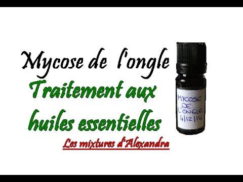 Mycose de l'ongle : traitement aux huiles essentielles recettes 100% naturelle