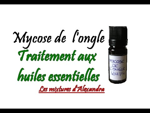 onychomycose traitement naturel