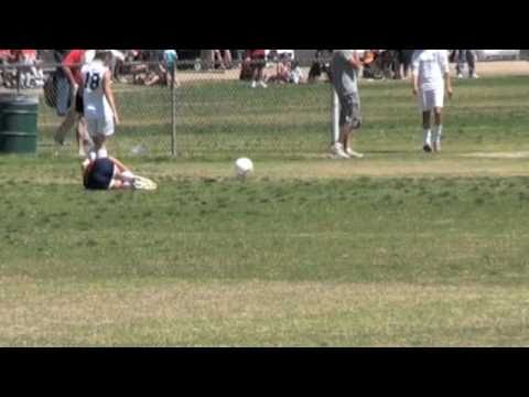 ACL Injury--16-year-old Female Soccer Player