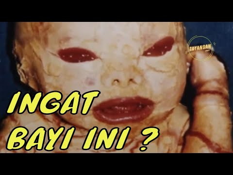 Kisah Nyata ! Bayi Mirip Alien Ini Sudah Dewasa, Lihat Dia Sekarang