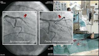 Реканализация, баллонная ангиопластика и стентирование коронарной артерии