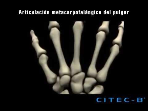 Columna del pulgar (3) - Articulación metacarpofalángica - YouTube