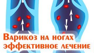 видео Хронический аднексит: лечение и облегчение симптомов народными средствами