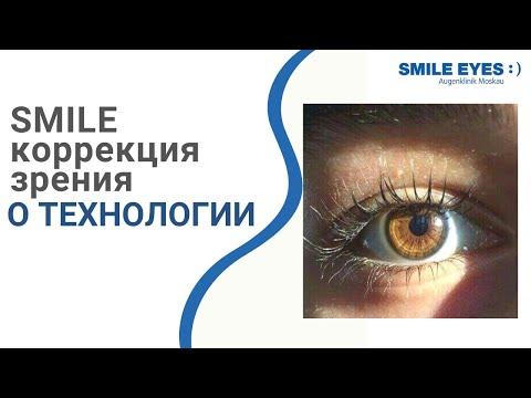 Эксимер лазерная коррекция зрения Москва. Операция лазером