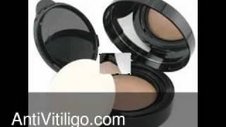 Chanel Vitiligo Makeup Thumbnail