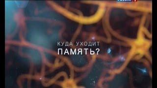 видео Болезнь Альцгеймера