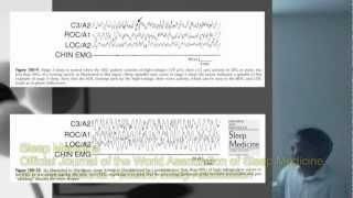 253 Neurofisiologia do EEG III. Continuação da discussão sobre origem dos rítmos cerebrais.