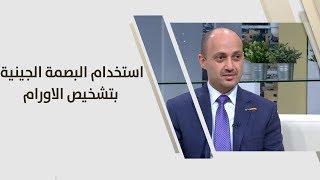 د. صلاح عباسي - استخدام البصمة الجينية بتشخيص الاورام واختيار العلاج المناسب
