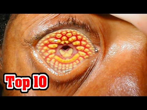 Top 10 Common Phobias You Probably Have