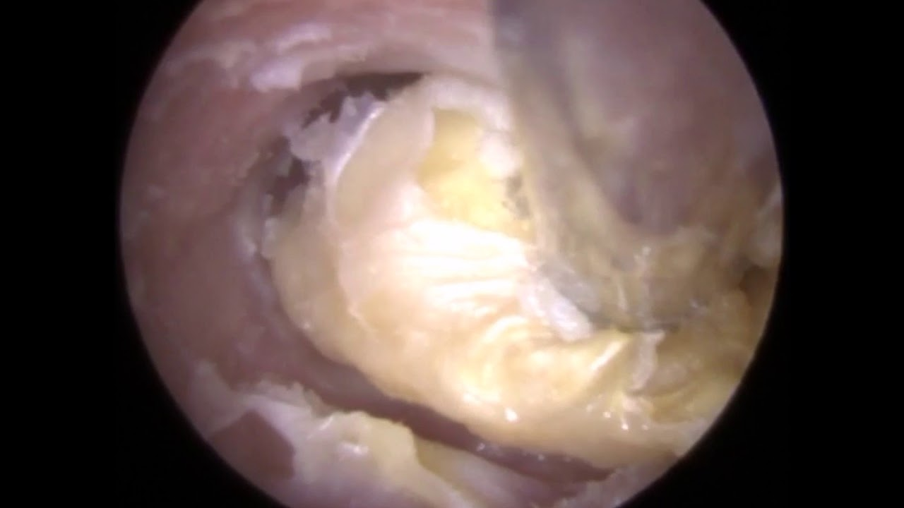 FUNGAL Ear Wax Removal (Otomycosis) in Otitis Externa Ear Canal - #323