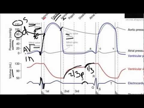 wiggers diagram tutorial 2004 kia sorento exhaust system