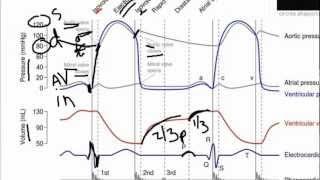 WIGGERS diagram made easy!. Game Walkthrough