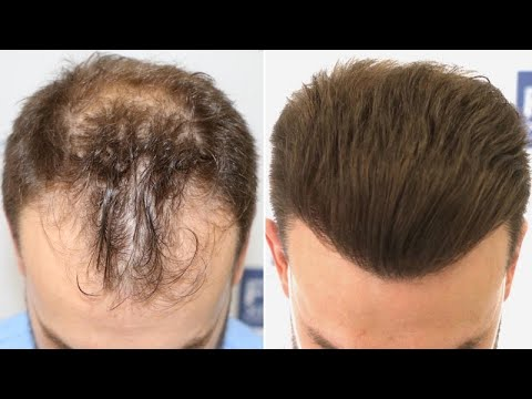 Download FUE Hair Transplant (3052 Grafts NW III-VI Vertex) By Dr Juan Couto - FUEXPERT CLINIC, Madrid, Spain