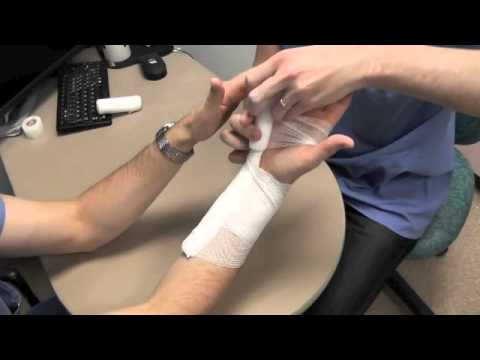 Ulnar Gutter Splint How To Youtube