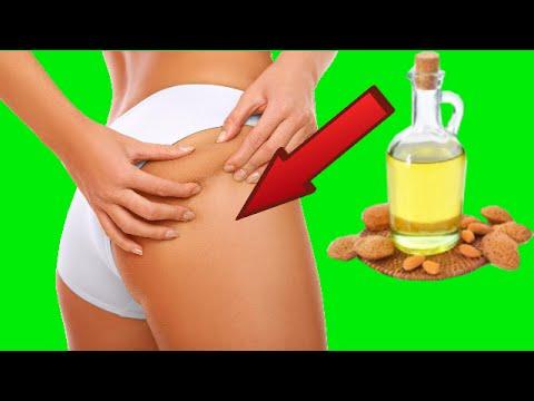 remedio casero para las estrias y celulitis