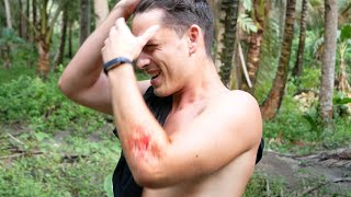 Disaster in the Philippines - How I got into a Bike Accident