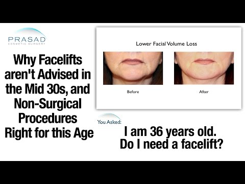 Why Facelifts are Generally Not Advised in the Mid 30s, and Procedures Right for this Age