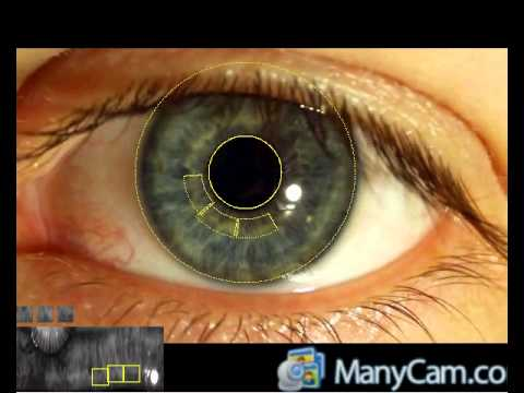 Real-time FPGA-based human iris recognition
