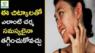 Skin allergy Treatment at Home - Mana Arogyam Telugu Health Tips ▻S...