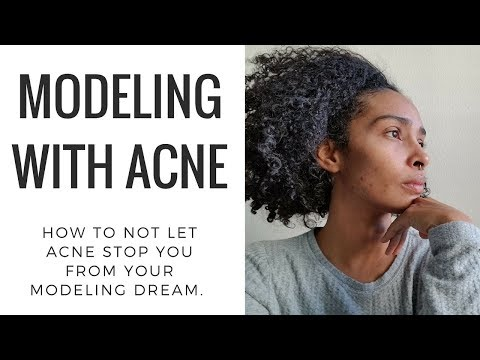 {REAL TALK} MODELING WITH ACNE