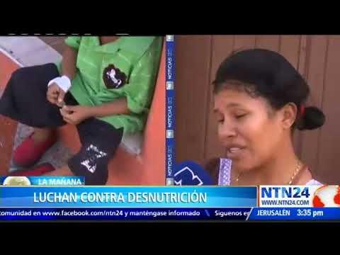 Familia venezolana emigró a Colombia en busca de ayuda para sus mellizos que padecen desnutrición