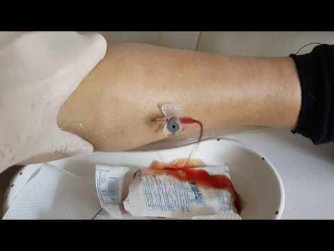 Киста Беккера коленного сустава и её лечение народными