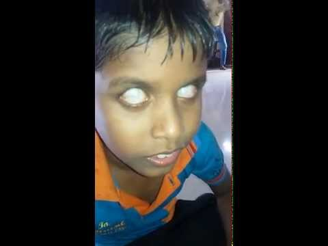 Please Help This Sri Lankan Blind Child For His Eye Operation He