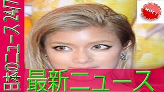 モデルで女優のローラが7月25日に公開した写真に「アンダーウエアが見え...