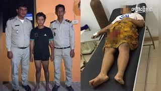 ដំណឹងហួសចិត្ត! ចាក់ធ្លាយគូទ ព្រោះភ្លើងប្រចណ្ឌប្រពន្ធ, Khmer News Today, Stand Up