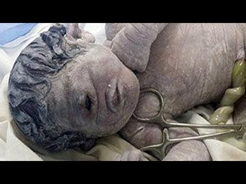 Cyclops Baby Born In Egypt