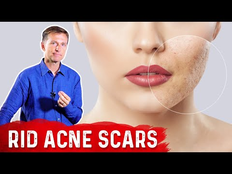 Best Way to Rid Acne Scars