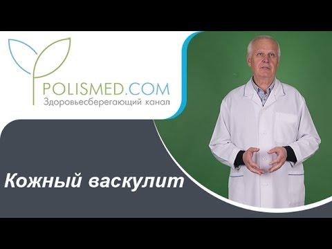 Крапивница симптомы болезни, профилактика и лечение