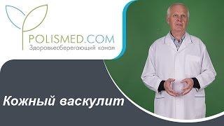 Кожный васкулит: причины, симптомы, диагностика, последствия