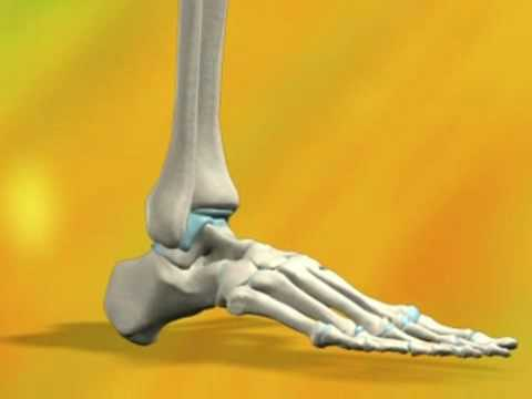 Why Do I Need Ankle Surgery?