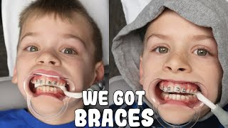 Zac and Chris Get Braces!!!