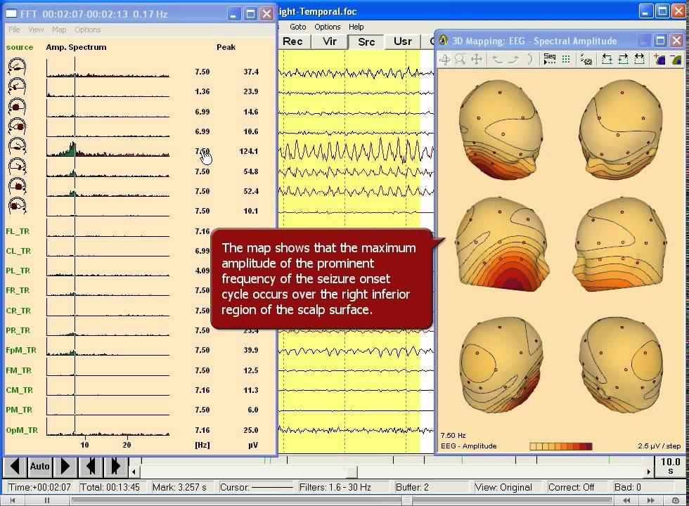 BESA 腦波分析_癲癇發作時的傳統腦波和 FFT 腦波對應 - YouTube