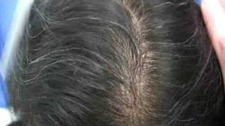 Best Hair Transplants - Dr Wong - 6648 Grafts - 2 Sessions