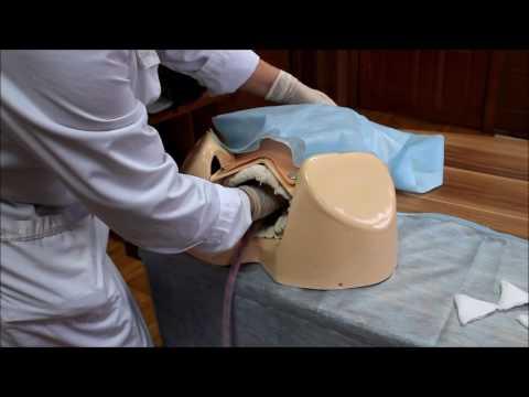 Ручное отделение плаценты