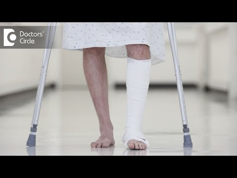 can-you-walk-with-a-broken-ankle?---dr.-hanume-gowda