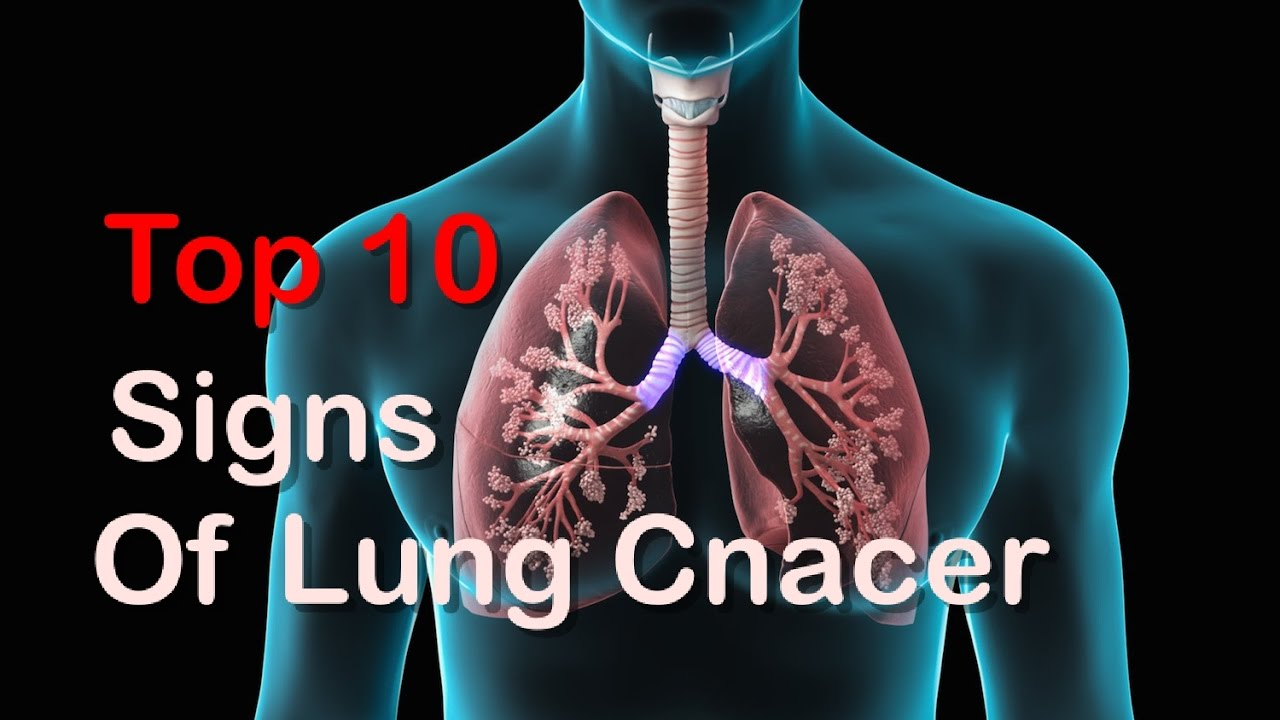 TOP 10 Early Signs Of Lung Cancer You Should Can't Ignore These Signs