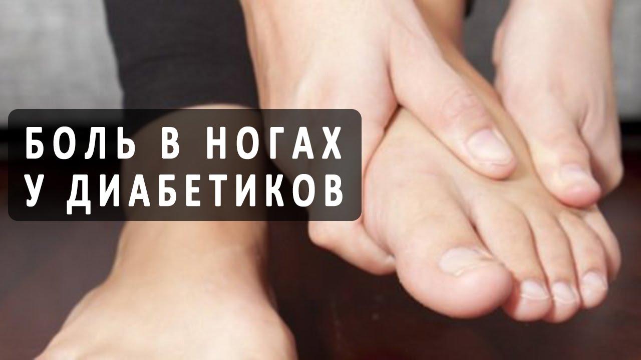 Болят ноги при варикозе что делать Варикоз