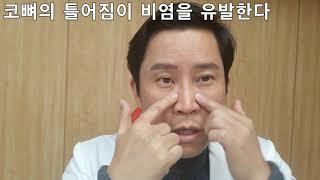 비염완치 위한 콧물빼기, 비염치료 위한 마사지법-by 한의사 Kevin