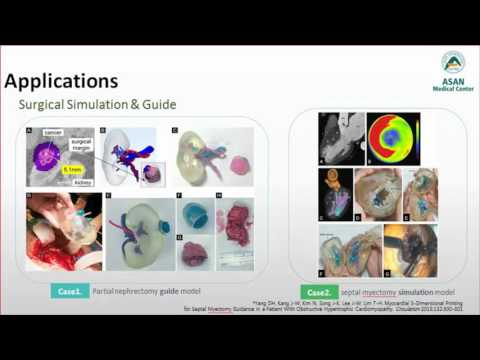 [Listen to Authors] 3D Printing Application in Medicine and Radiology