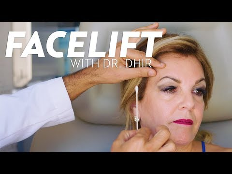 Facelift Surgery with Eye Lift for Idania   PLASTIC with Dr. Dhir
