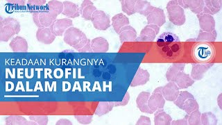 Trombosit, Disebut Juga dengan Keping Darah, Sel yang Berperan Penting dalam Proses Pembekuan Darah.
