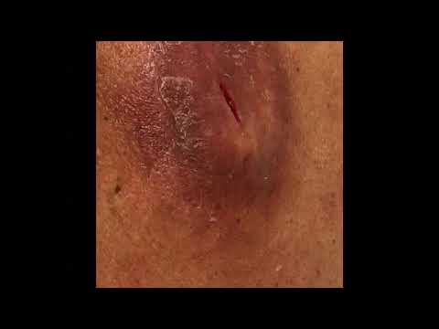 Infected Sebaceous Cyst Wound Care & Packing 1 week Post Lancing - Part 6