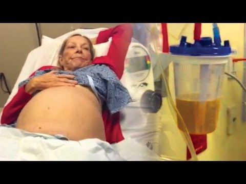 how to perform an abdominal fluid drainage procedure  - Nurse Practitioner Student Mrs  Starr