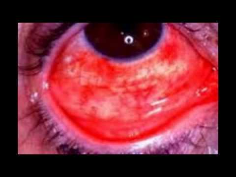 Eye Diseases In Humans Youtube