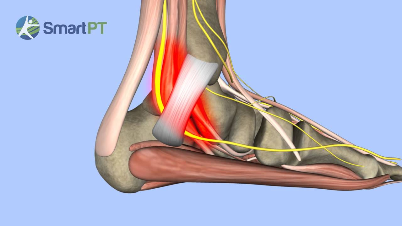 Tarsal Tunnel Syndrome - YouTube